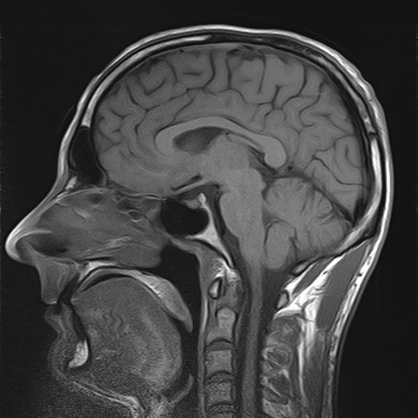 how to read mri brain pdf