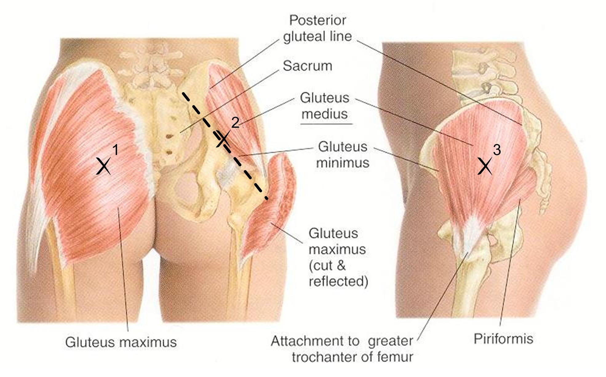 gluteal tendinopathy exercises pdf